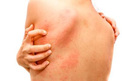 Дерматоз – причины и лечение