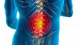 Диагностика и лечение позвоночной грыжи
