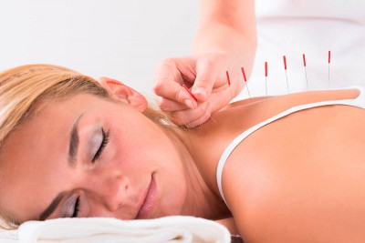 Иглорефлексотерапия помогает при остеохондрозе