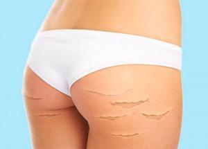 Как удалить растяжки на коже