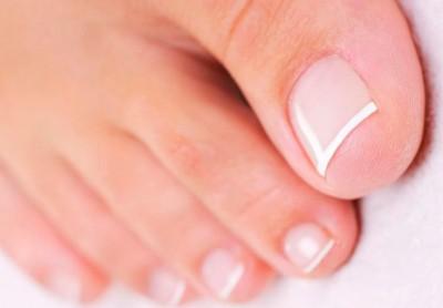 Лечение вросшего ногтя дома