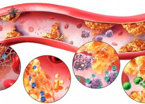 Учёные всего мира бьют тревогу – атеросклероз выявляют даже у детей и подростков
